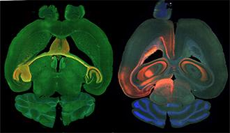 A green brain scan