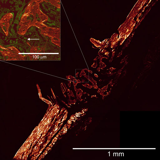 Figure. NLOM (SHG) image of the unstained mouse bone fracture, showing the bone regrowth (centre). Inset: An overlay image of SHG (red) and MPF (green) zoomed area (white square). Red blood cells (arrow) are clearly observable.  Preliminary results of our collaborative work with the ANZAC Research Institute investigators.