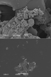Top) Biofilm on a textured implant, compared with (bottom) scant biofilm on a smooth implant. Credit: Surgical Infection Research Group, Australian School of Advanced Medicine